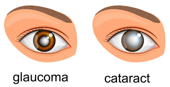 Glaucoma or cataract?